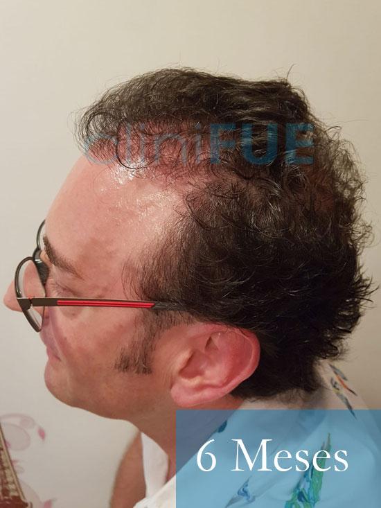 Jose-Ignacio-33-trasplante-pelo-6-meses 5