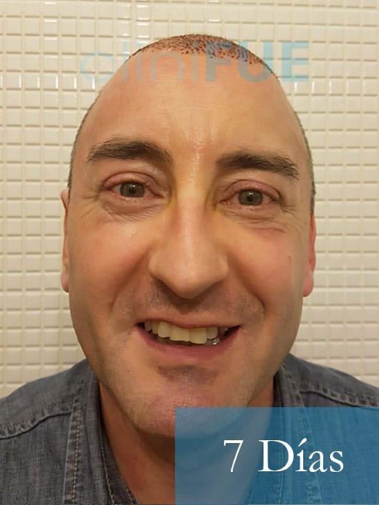 Jose-Ignacio-33-trasplante-pelo-7-dias-1