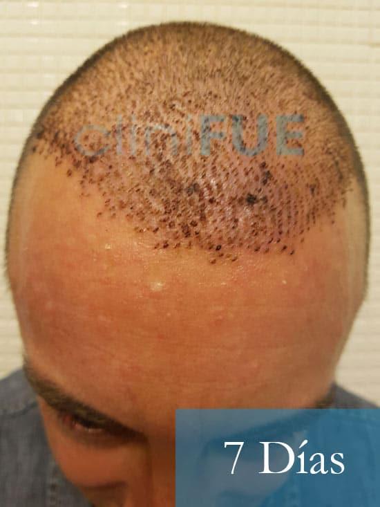 Jose-Ignacio-33-trasplante-pelo-7-dias-2