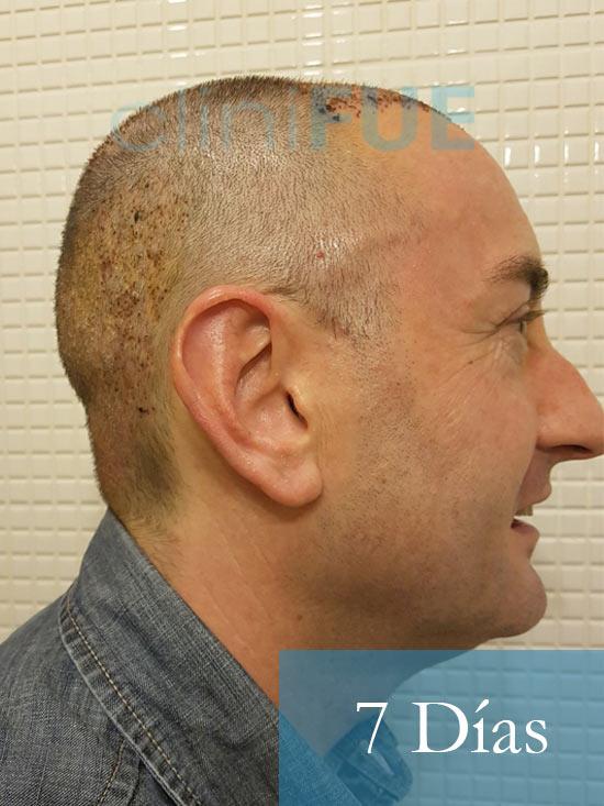 Jose-Ignacio-33-trasplante-pelo-7-dias-4