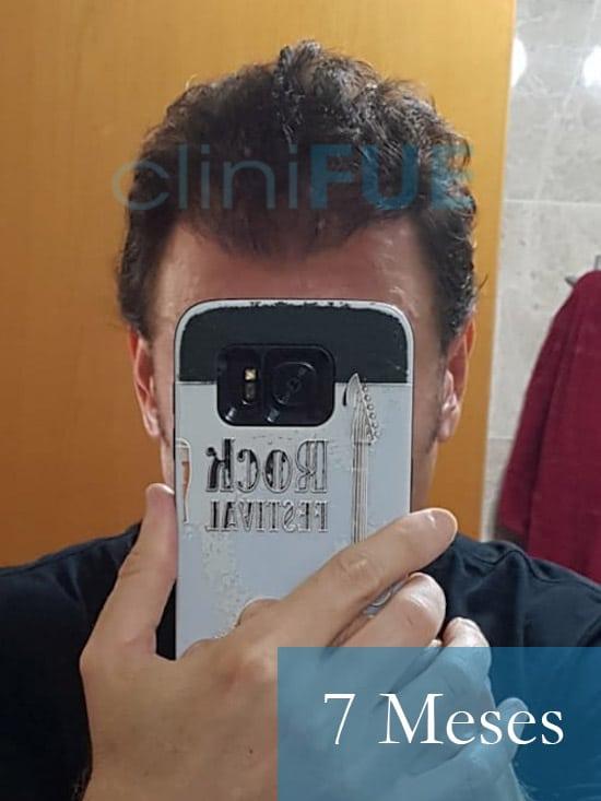 Jose-Ignacio-33-trasplante-pelo-7-meses 1
