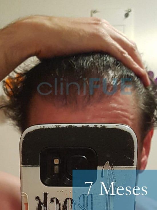 Jose-Ignacio-33-trasplante-pelo-7-meses 2