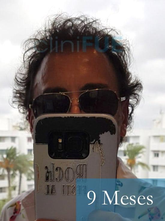 Jose-Ignacio-33-trasplante-pelo-9-meses 1