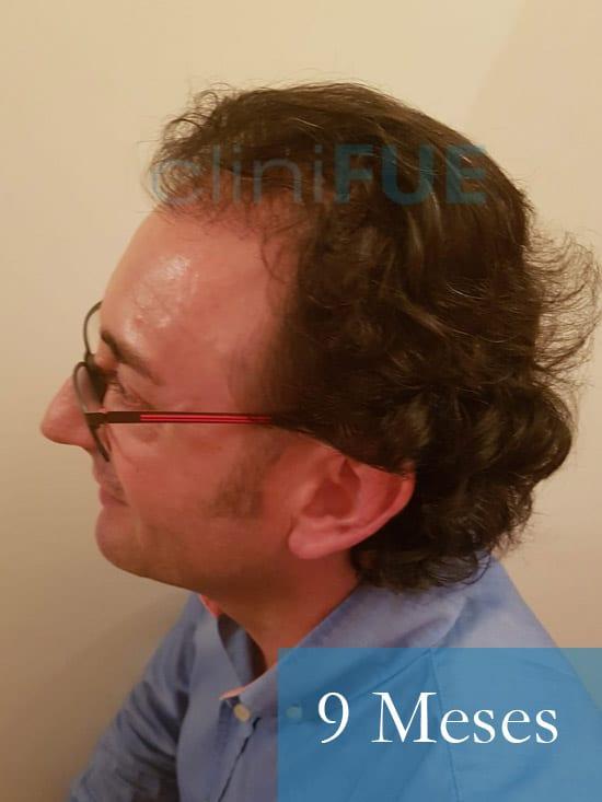 Jose-Ignacio-33-trasplante-pelo-9-meses 4