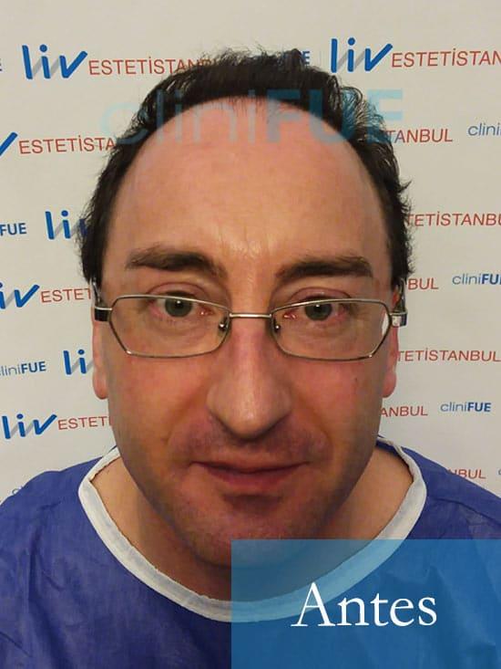 Jose-Ignacio-33-trasplante-pelo-antes-1