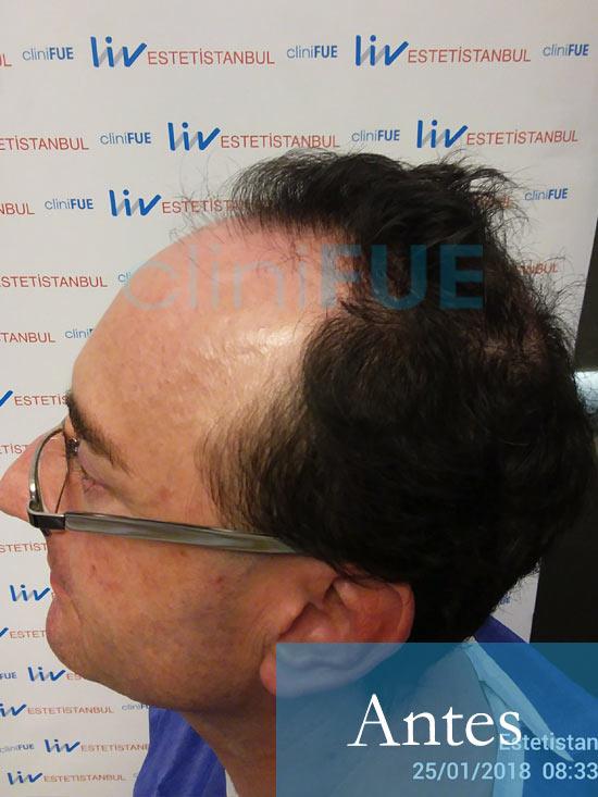 Jose-Ignacio-33-trasplante-pelo-antes- 3