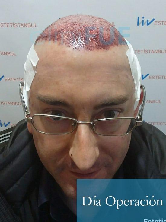 Jose-Ignacio-33-trasplante-pelo-dia-operacion-1