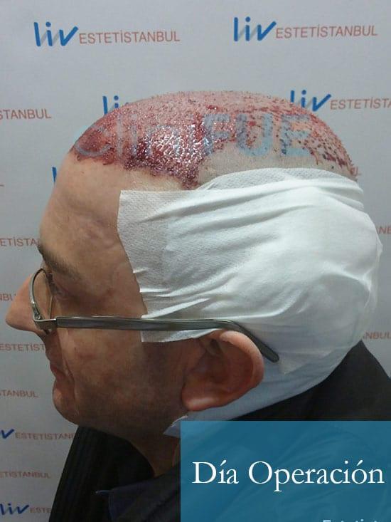 Jose-Ignacio-33-trasplante-pelo-dia-operacion-6