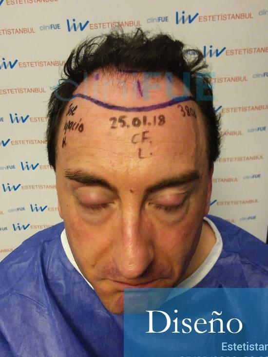 Jose-Ignacio-33-trasplante-pelo-diseno-1