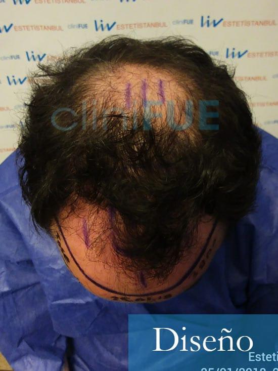 Jose-Ignacio-33-trasplante-pelo-diseno-2