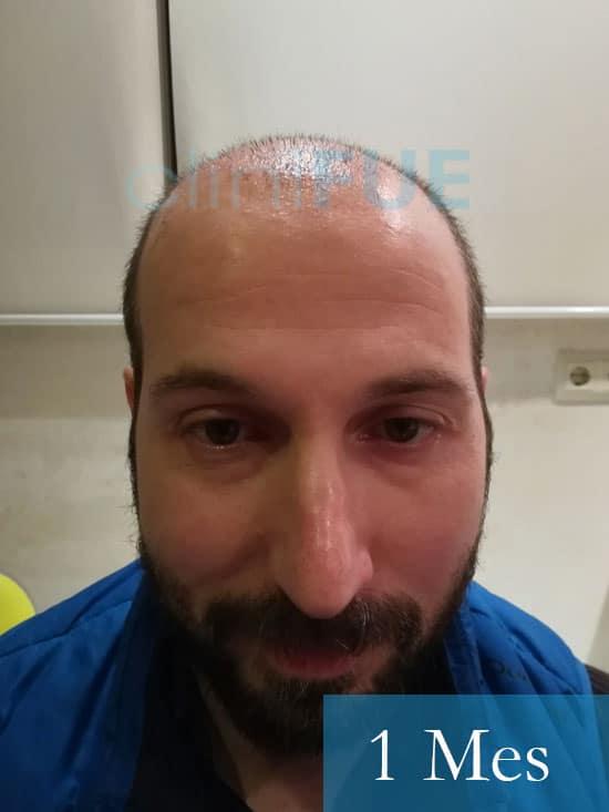 Juan Antonio 36 Mallorca trasplante turquia primera operacion 1 mes