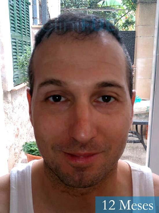 Juan Antonio 36 años Mallorca injerto capilar turquia segunda operacion antes
