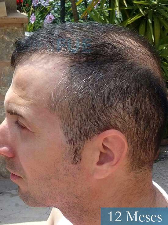 Juan Antonio 36 años Mallorca injerto capilar turquia segunda operacion antes 5