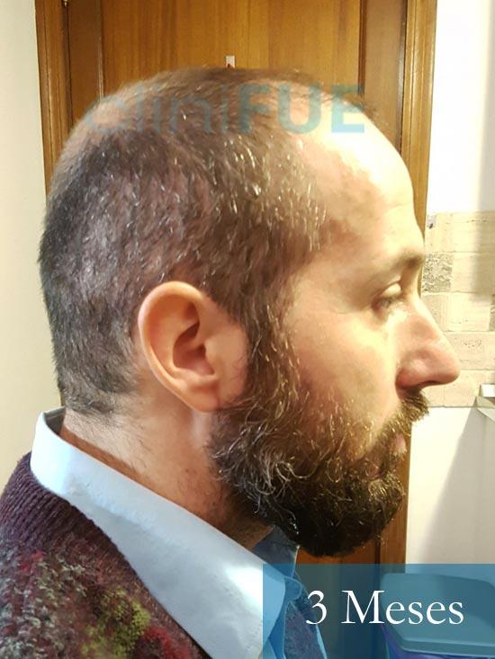 Juan Antonio 36 Mallorca trasplante turquia primera operacion 3 meses 3