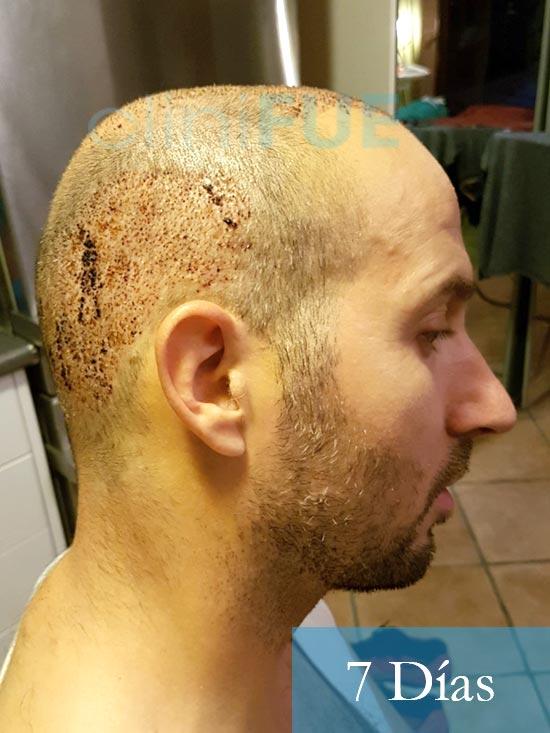 Juan-Antonio-36-Mallorca-trasplante-turquia-primera operacion-7-dias 4