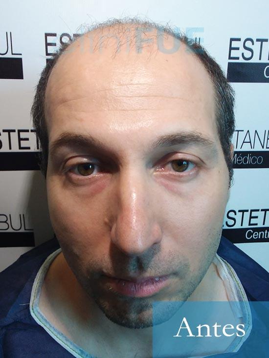Juan-Antonio-36-Mallorca-trasplante-turquia-primera operacion-dia operacion 1