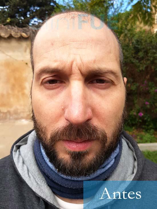 Juan Antonio 36 años Mallorca injerto capilar turquia primera operacion 1