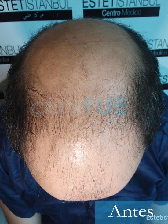 Juan-Antonio-36-Mallorca-trasplante-turquia-primera operacion-dia operacion 2