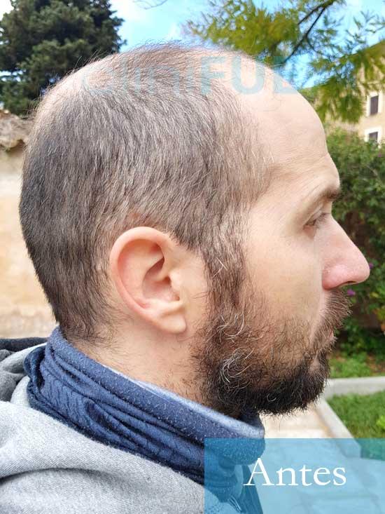 Juan Antonio 36 años Mallorca injerto capilar turquia primera operacion 4