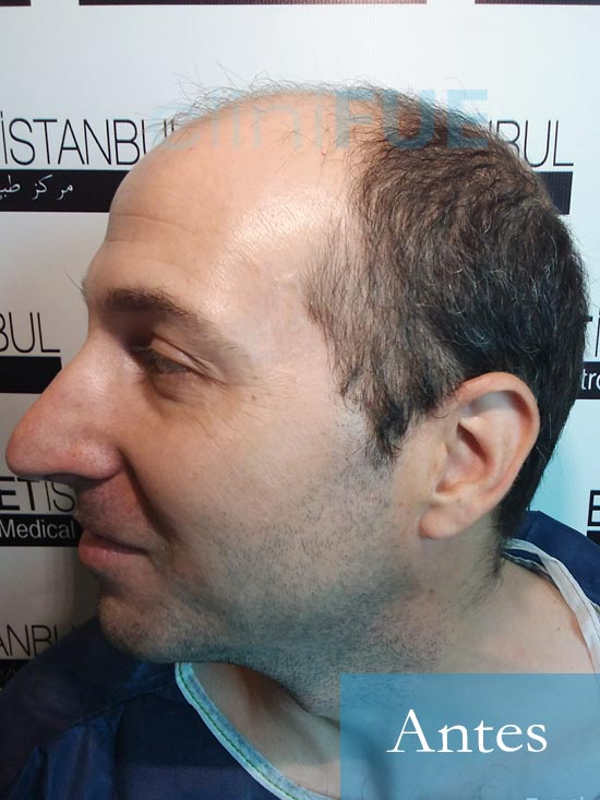 Juan-Antonio-36-Mallorca-trasplante-turquia-primera operacion-dia operacion 3