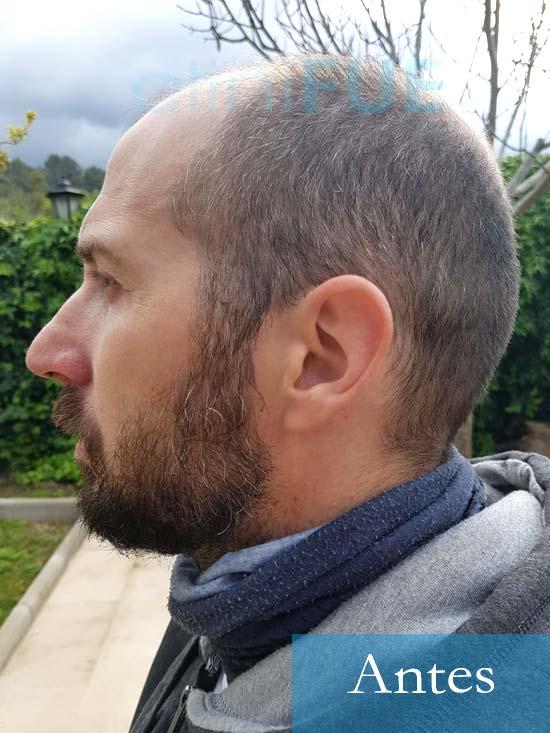Juan Antonio 36 años Mallorca injerto capilar turquia primera operacion 5