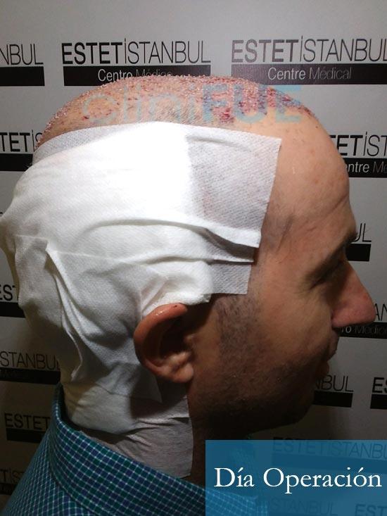 Juan-Antonio-36-Mallorca-trasplante-turquia-primera operacion-dia operacion 9