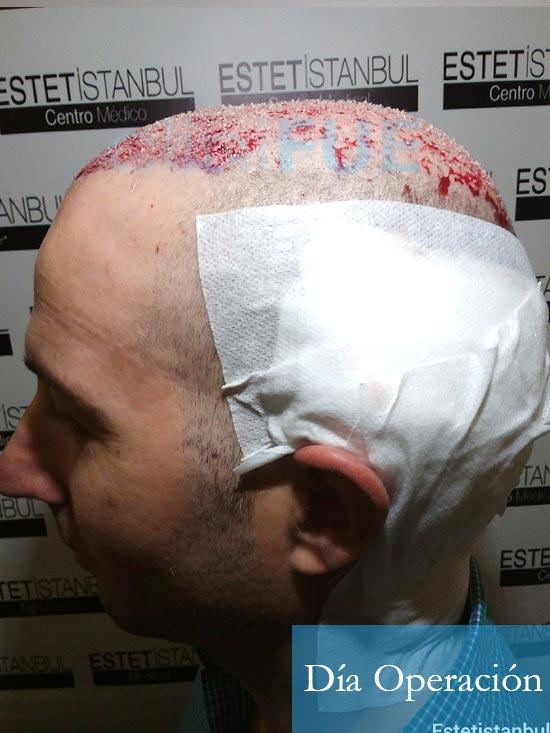 Juan-Antonio-36-Mallorca-trasplante-turquia-primera operacion-dia operacion 10