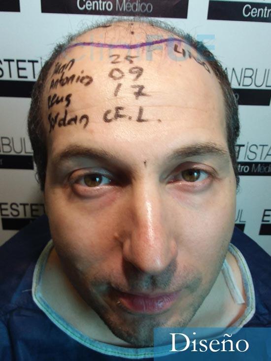 Juan-Antonio-36-Mallorca-trasplante-turquia-primera operacion-dia operacion 5