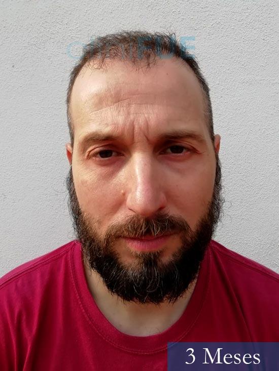 Juan Antonio 36 Mallorca trasplante turquia segunda operacion 3 meses