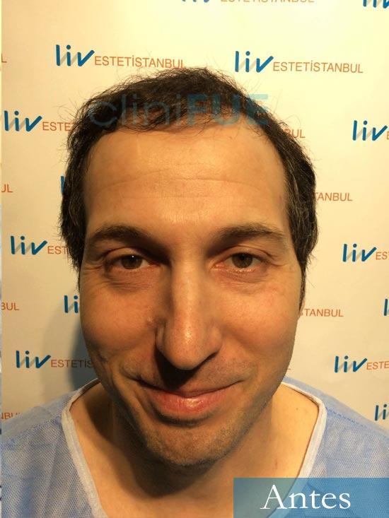 Juan-Antonio-36-Mallorca-trasplante-turquia-segunda operacion-dia operacion