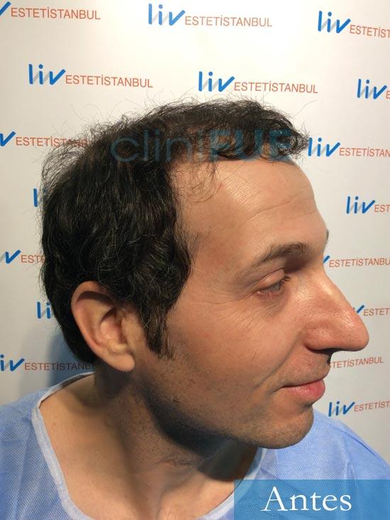 Juan-Antonio-36-Mallorca-trasplante-turquia-segunda-operacion-dia operacion 3