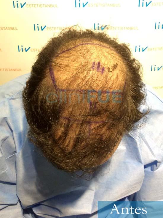 Juan-Antonio-36-Mallorca-trasplante-turquia-segunda-operacion-dia operacion 6