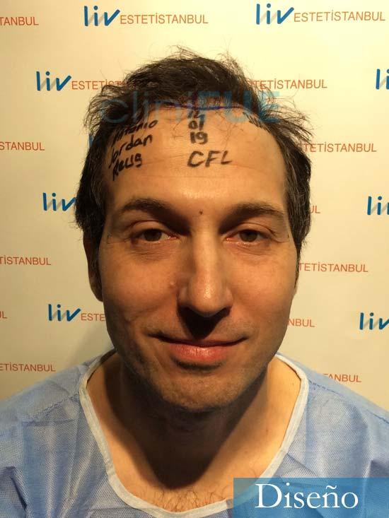 Juan-Antonio-36-Mallorca-trasplante-turquia-segunda-operacion-dia operacion 5