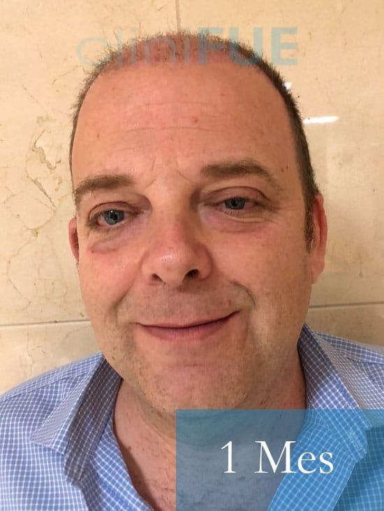 Julian 45 años Cordoba trasplante capilar turquia 1 Mes 1