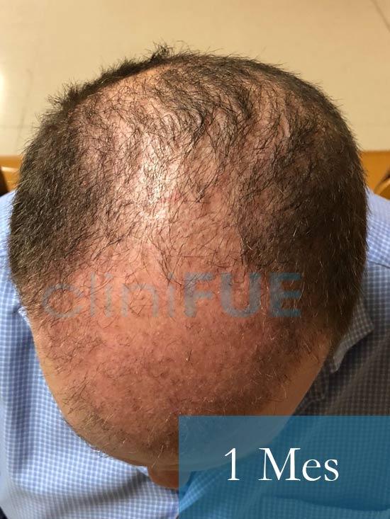 Julian 45 años Cordoba trasplante capilar turquia 1 Mes 2
