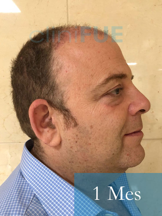Julian 45 años Cordoba trasplante capilar turquia 1 Mes 3