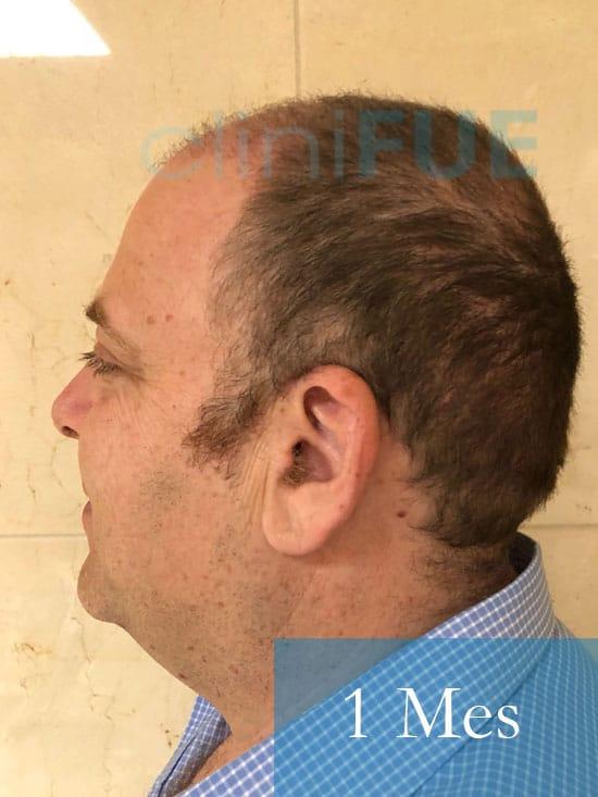 Julian 45 años Cordoba trasplante capilar turquia 1 Mes 4