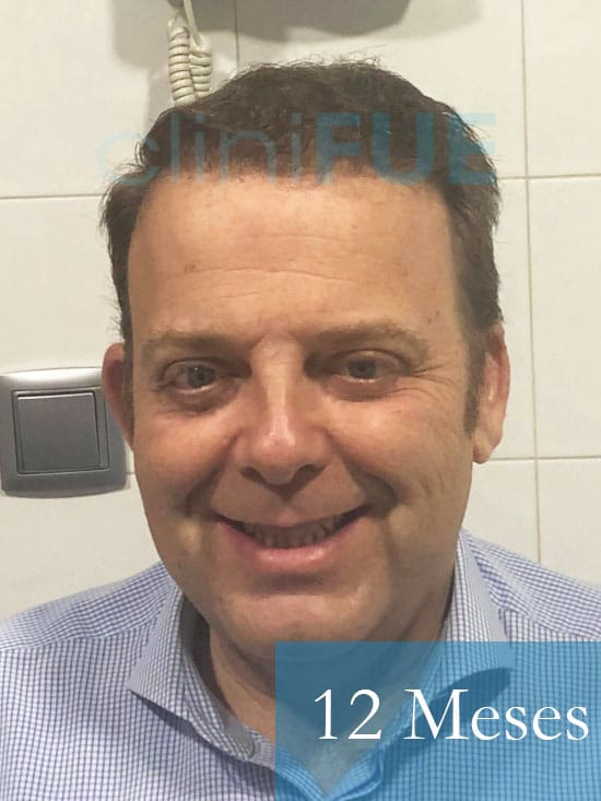 Julian 45 años Cordoba trasplante capilar turquia 12 Meses 1