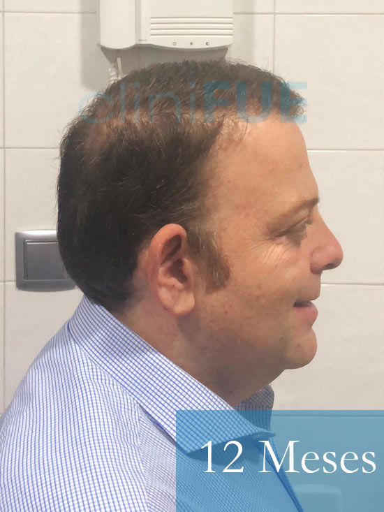 Julian 45 años Cordoba trasplante capilar turquia 12 Meses 3