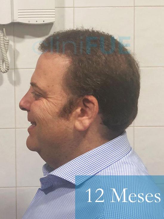 Julian 45 años Cordoba trasplante capilar turquia 12 Meses 4