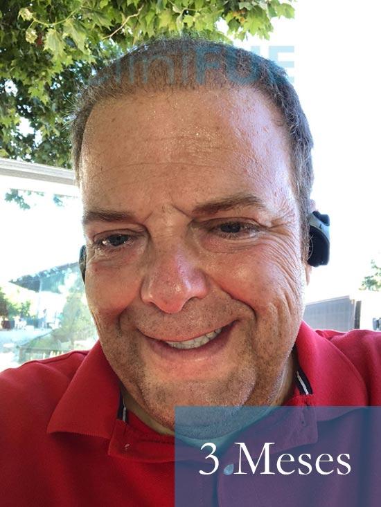 Julian 45 años Cordoba trasplante capilar turquia 3 Meses 1