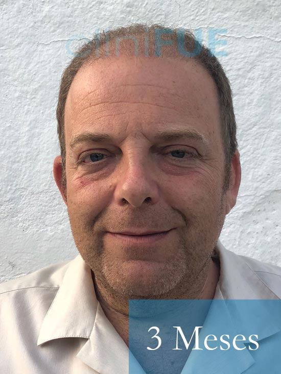 Julian 45 años Cordoba trasplante capilar turquia 3 Meses 2
