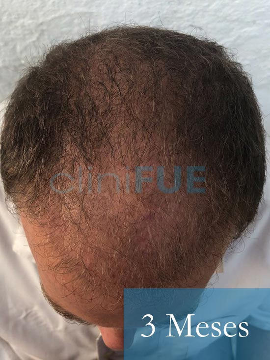 Julian 45 años Cordoba trasplante capilar turquia 3 Meses 3