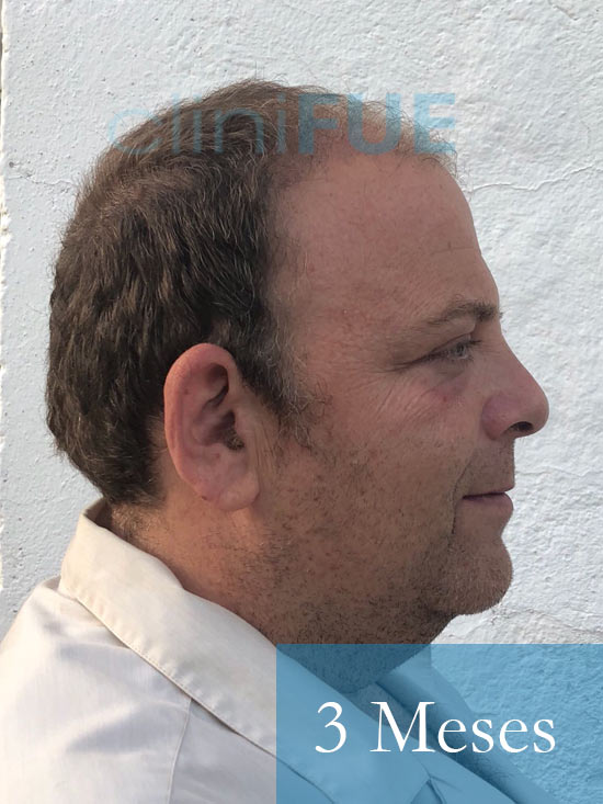 Julian 45 años Cordoba trasplante capilar turquia 3 Meses 4