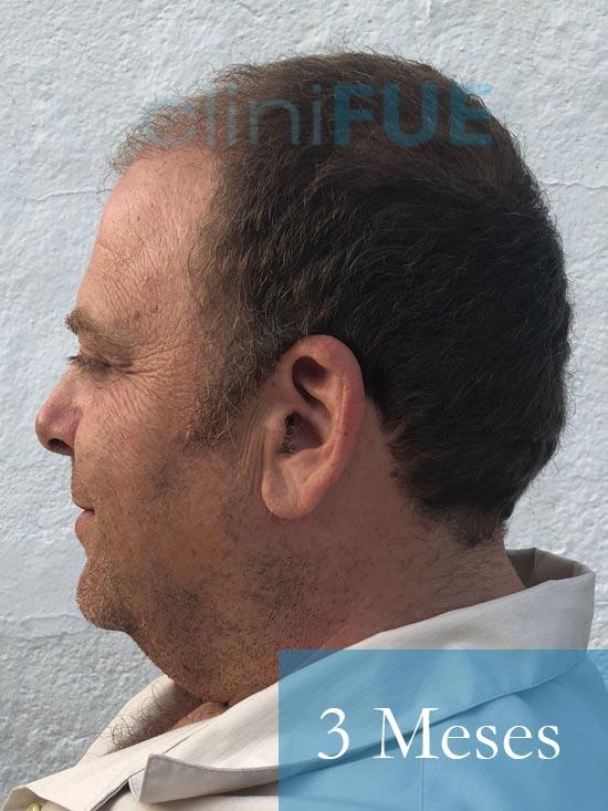 Julian 45 años Cordoba trasplante capilar turquia 3 Meses 5