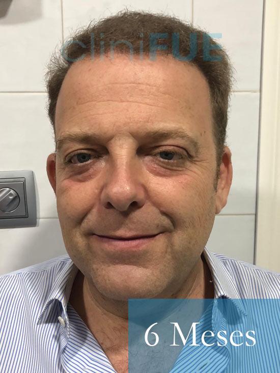 Julian 45 años Cordoba trasplante capilar turquia 6 Meses 1