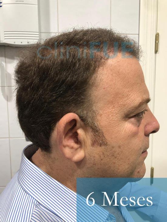 Julian 45 años Cordoba trasplante capilar turquia 6 Meses 3