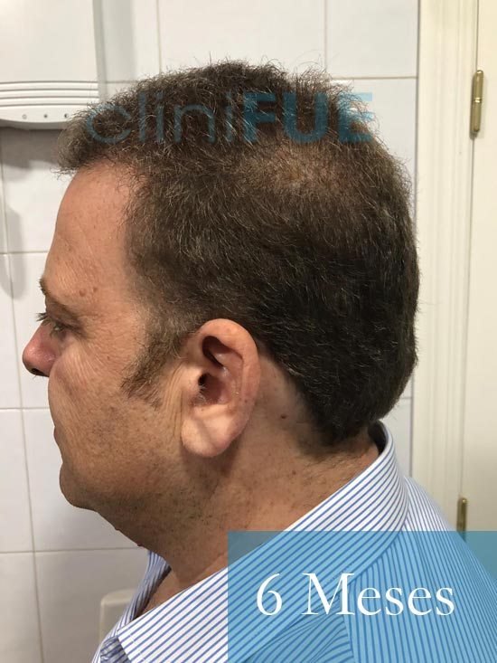 Julian 45 años Cordoba trasplante capilar turquia 6 Meses 4