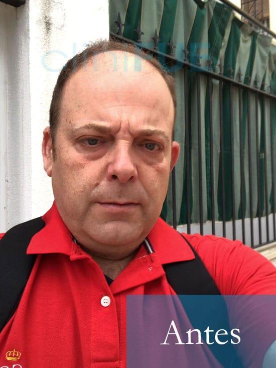 Julian 45 años Cordoba trasplante capilar turquia Antes 2