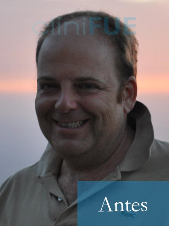Julian 45 años Cordoba trasplante capilar turquia Antes 3